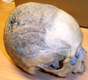 Kranium osteosarcoma